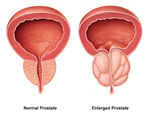 a diagram of a normal prostate vs. an enlarged prostate